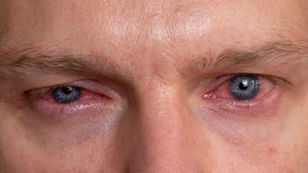 Causes of Allergies In The Eyes